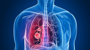 Precaution to Avoid Lung and Respiratory Diseases