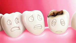 Tooth Decay Treatment with Eggshells