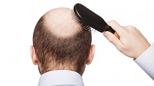 Causes Of Baldness In Males