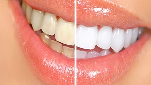 Natural Homemade Whitening Toothpastes