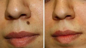 Remove Moles from Face Yourself