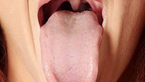 What Your Tongue Tells About Your Health