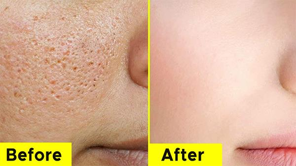 How to Remove Open Pores