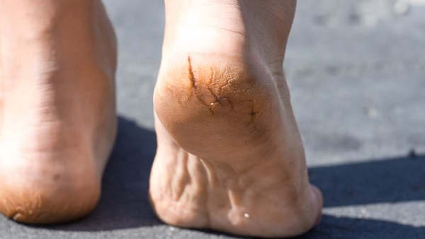 Easy Home Remedies to cure Cracked Heels