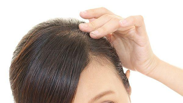 Tips To Control Hairfall,Thin, Hair Growth Problems