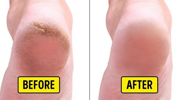 Effective Home Remedies For Cracked Heels