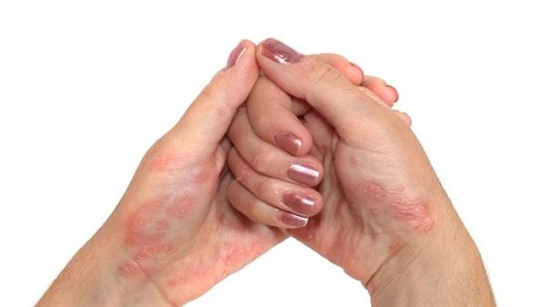 Tips For Psoriasis