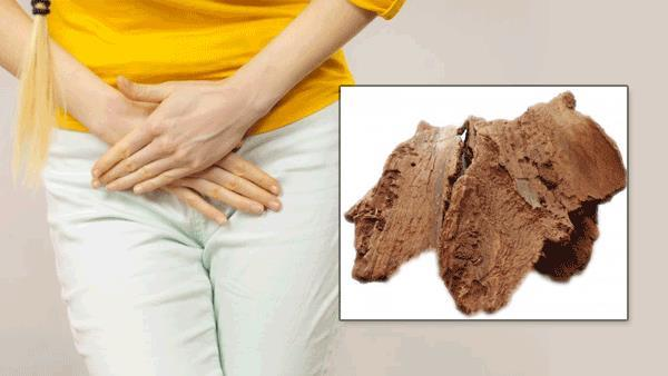 Urine Tract Infection Treatment