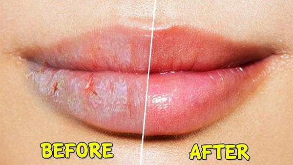 Lips Care Tips for winter
