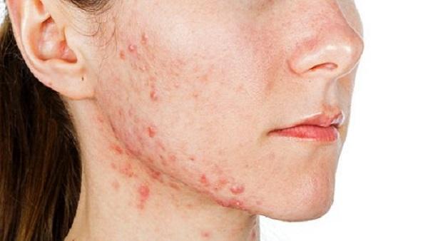Celebrity Skin - Anti Aging Secrets - cosmopolitan.com