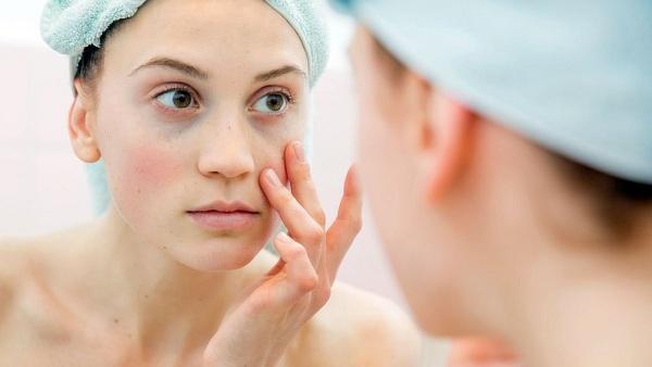 Freckles Removal Tip