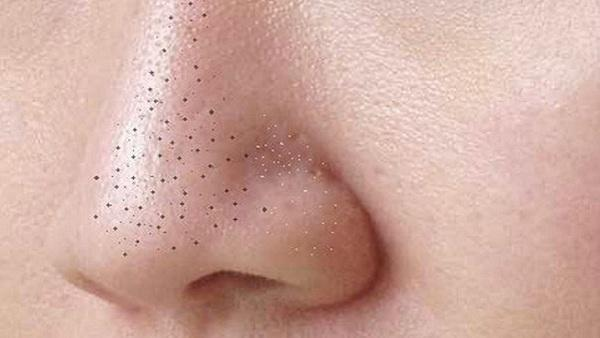 How to Reduce Blackheads