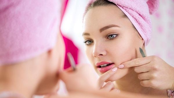 Home Remedies for Acne & Pimples - Keel Mahasay ka ilaj