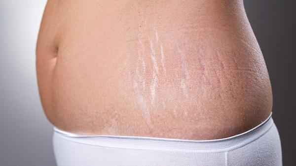 How to Minimize Stretch Marks (after Pregnancy) !