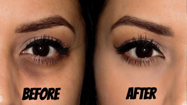 Improve Your Tone and Get Rid of Dark Circles