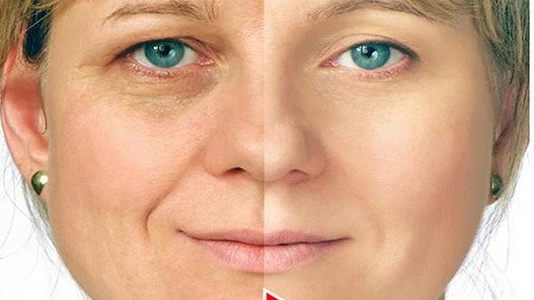 Homemade Anti Aging Cream