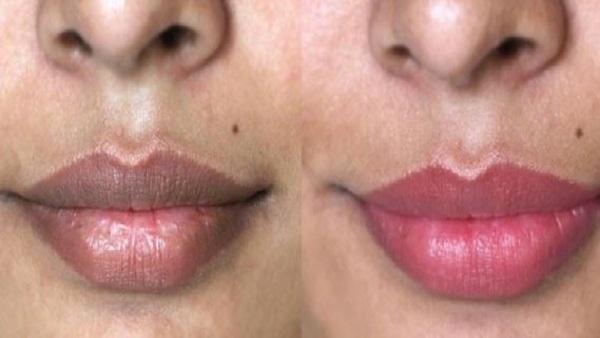 Dark Lips sy Chutkarah Hasil Krny ka Asan Tarika